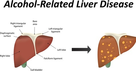 Alcoholic Liver Disease - Understanding Alcohol And Liver ...